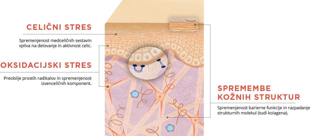 Grafični prikaz prereza kože